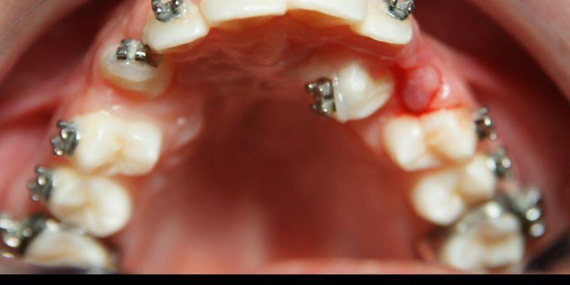 ortodonzia.001